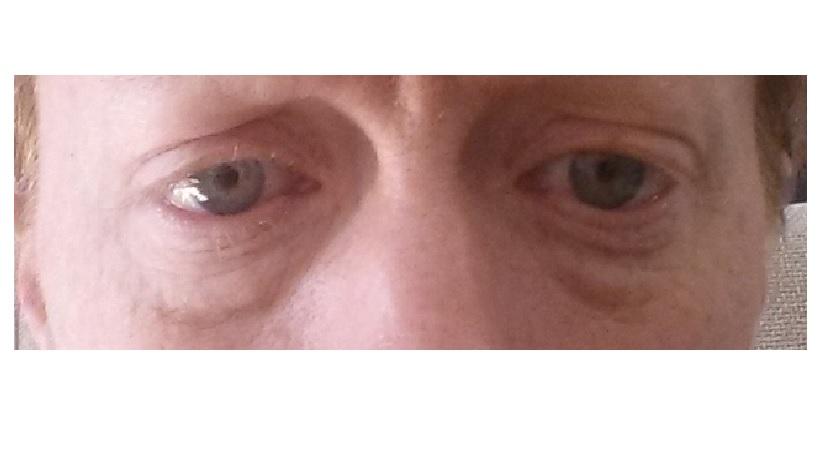 Photo eyes